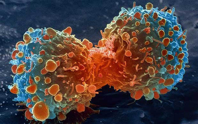 Cancer – Important Facts to Know About These Deadly Diseases
